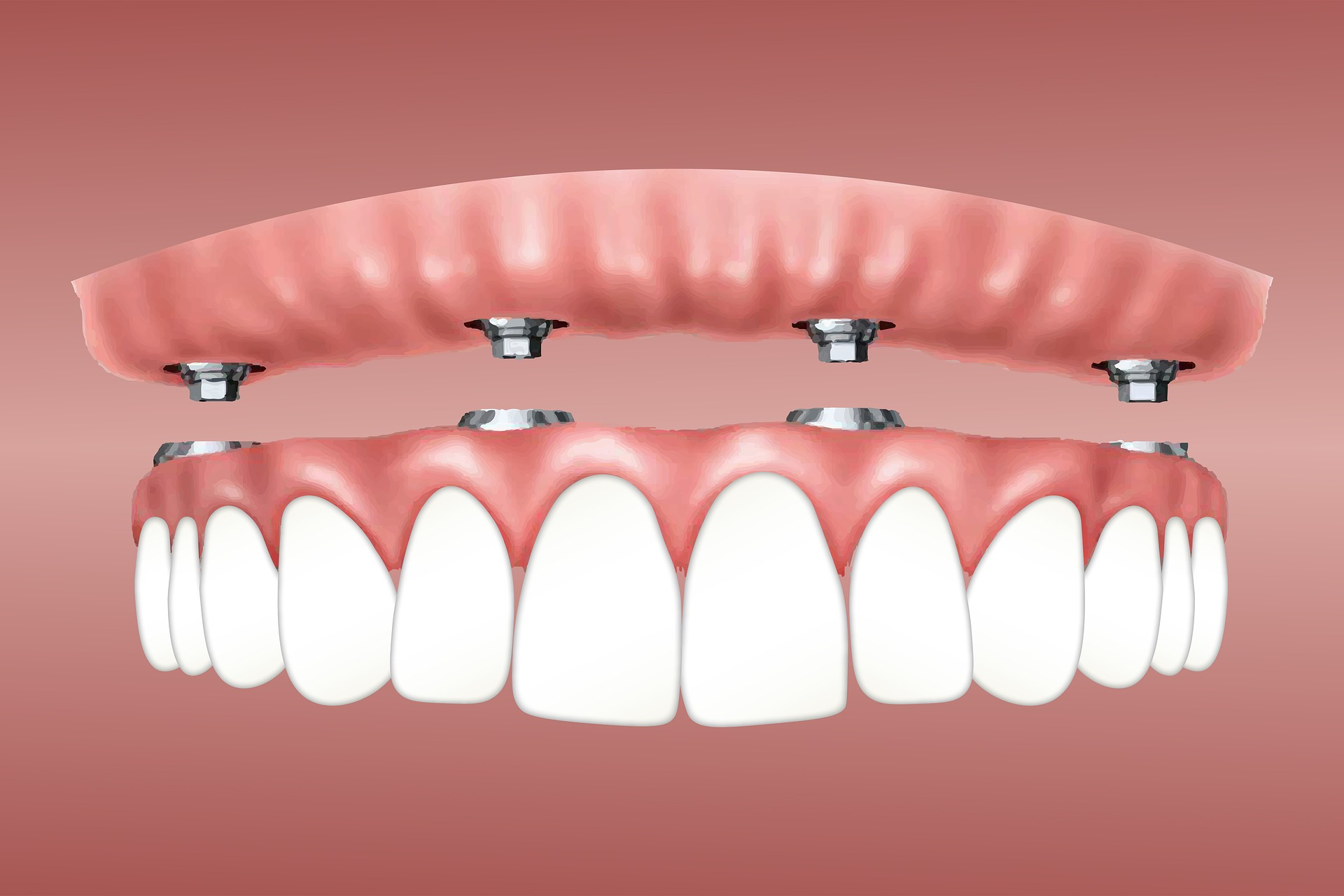 full denture tooth implants
